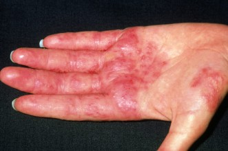 dermatitis<br /><br />  Skin problems: Contact dermatitis