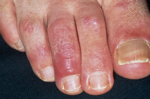 Adult Chilblains_Science Photo Library