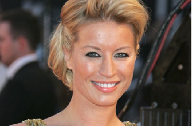 Denise Van Outen has scarred her face through using sunbeds