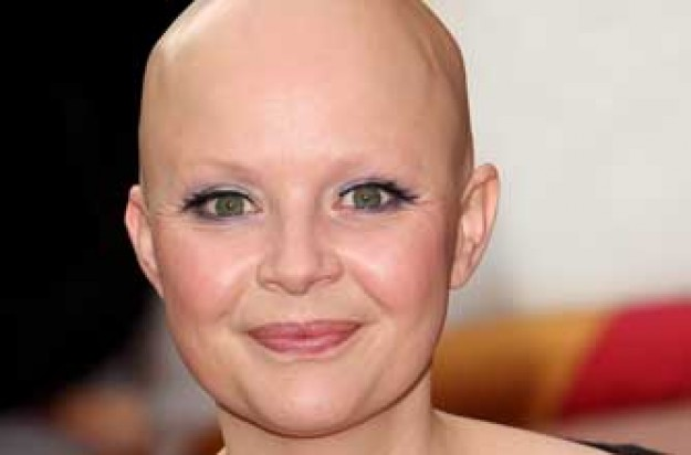 Gail Porter's hair has started to grow back
