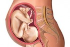 Illustration of a 28 week old foetus