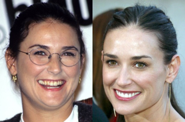 Demi Moore, teeth