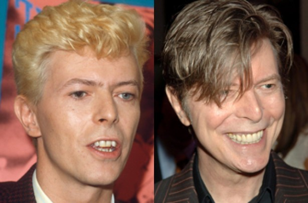 David Bowie, teeth