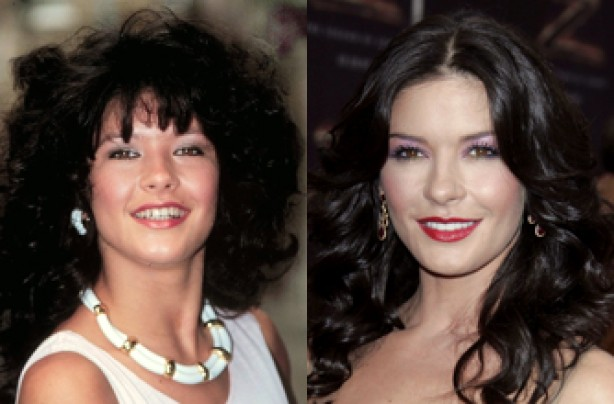 Catherine Zeta-Jones, teeth