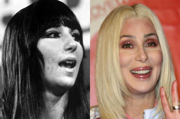 Cher, teeth