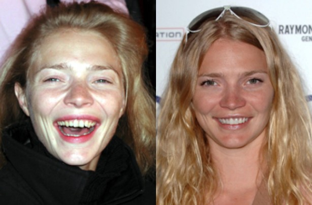Jodie Kidd, teeth