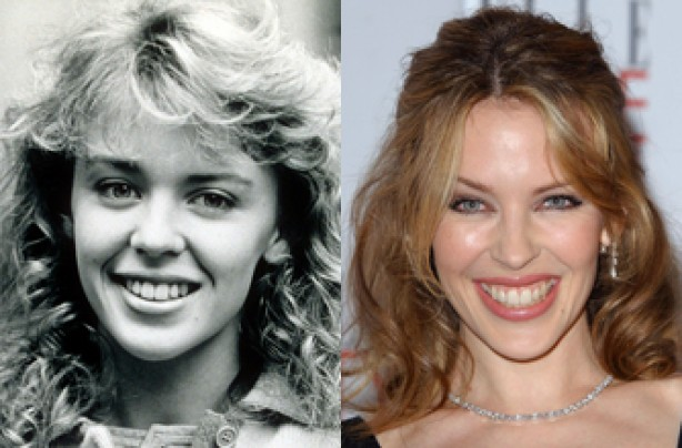 Kylie Minogue, teeth