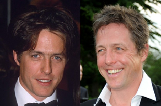Hugh Grant, teeth