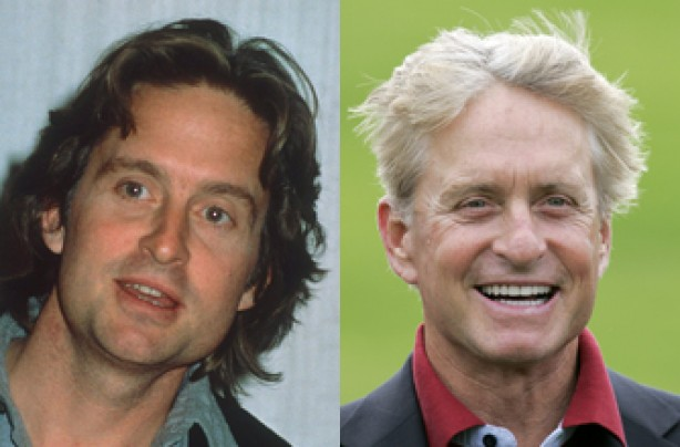 Michael Douglas, teeth