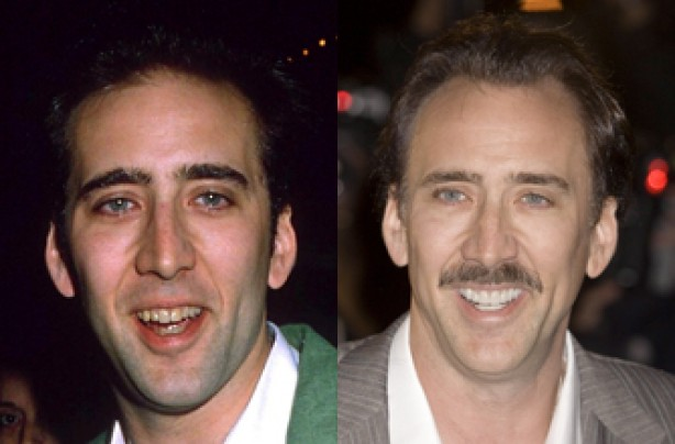 Nicolas Cage, teeth