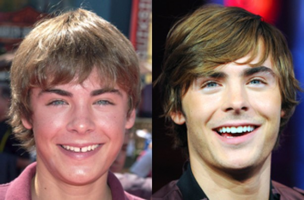 Zac Efron, teeth