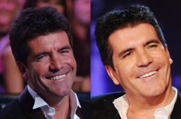 Simon Cowell, teeth