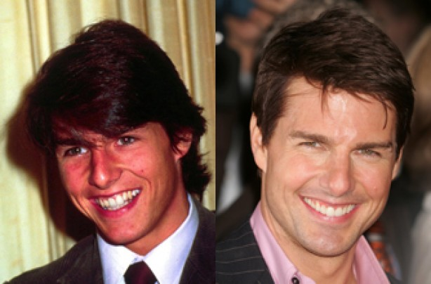 Tom Cruise, teeth