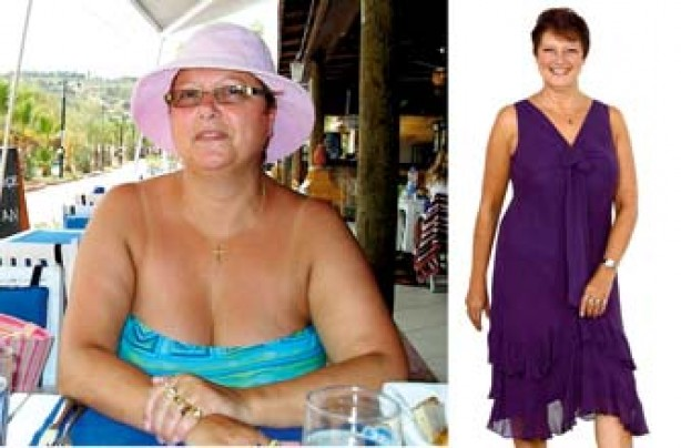 Before and after: Sue Harris