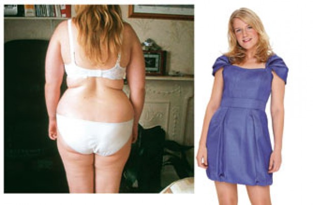Before and after: Lucy White