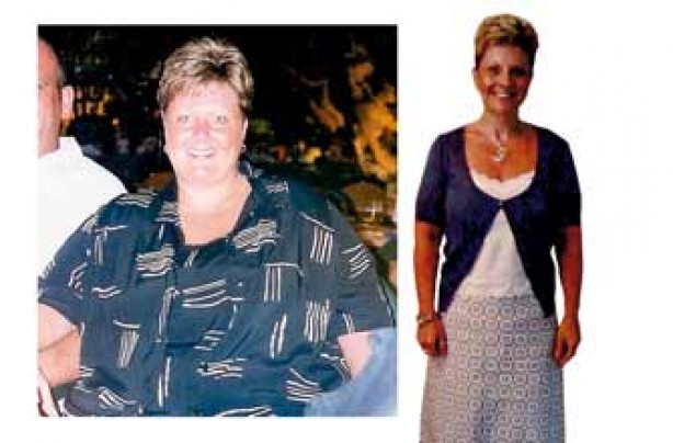 Before and after: Beverley Phillips