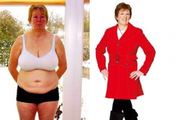Before and after: Ann Bliss