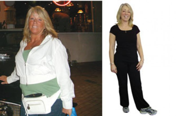 Before and after: Jane Lewis