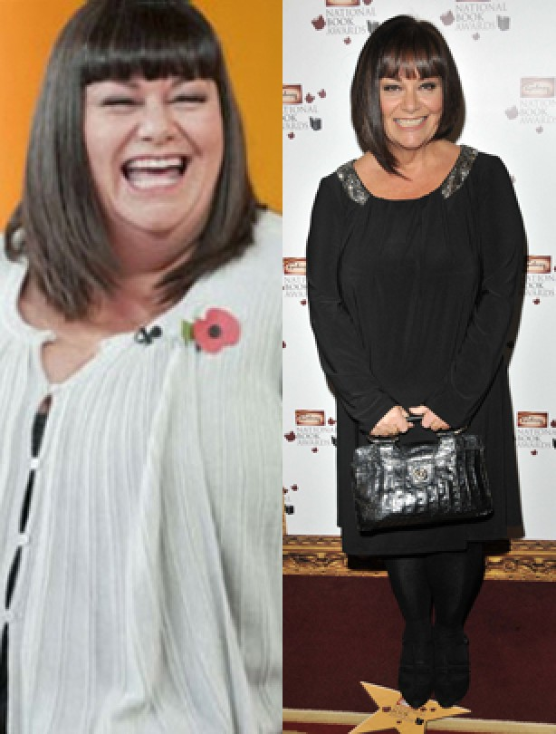 Dawn French changes shape - goodtoknow