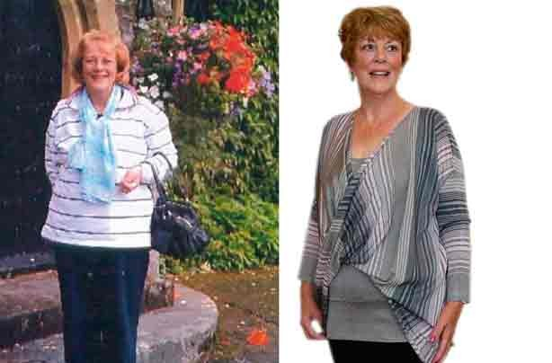Before and after: Iris O'Brien