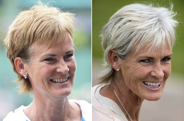 Judy Murray's teeth before and after