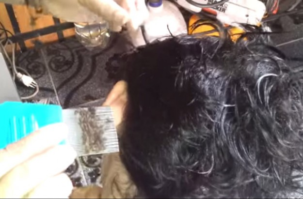 Head lice video