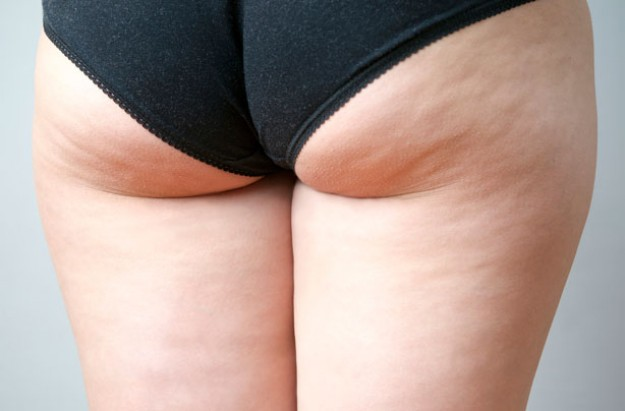 Woman's thighs, cellulite