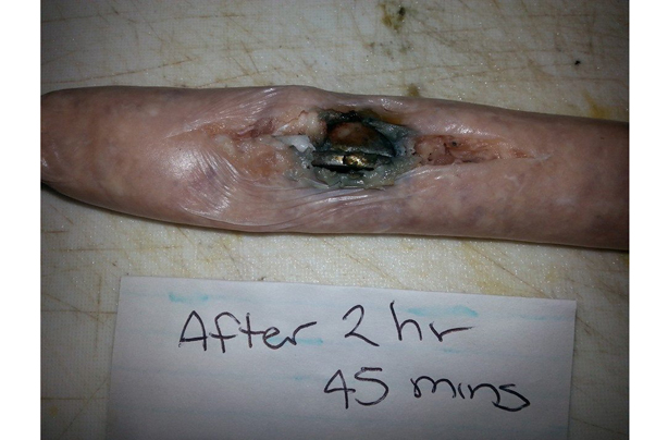 The SHOCKING damage swallowing a button battery can do to ...