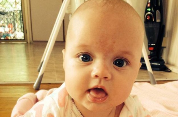 Ocea Varney Beckwith-Wiedemann Syndrome