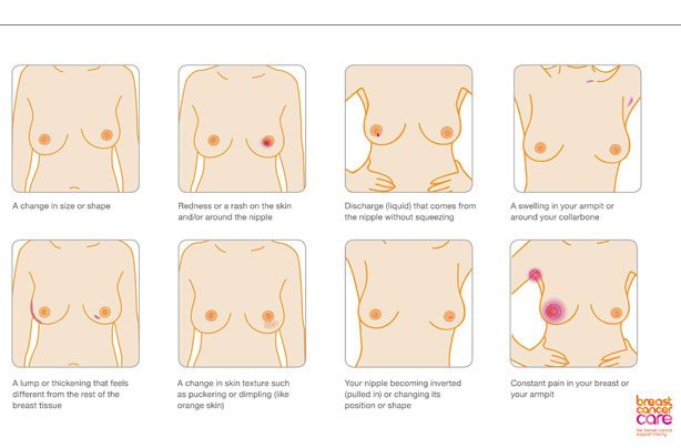 does breast cancer skip a generation