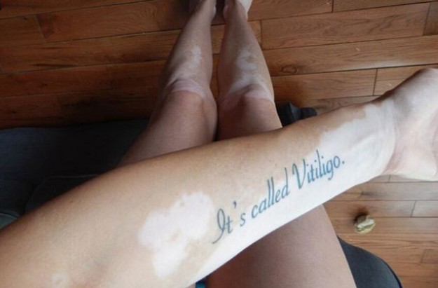 Tiffany Grant It's Called Vitiligo tattoo