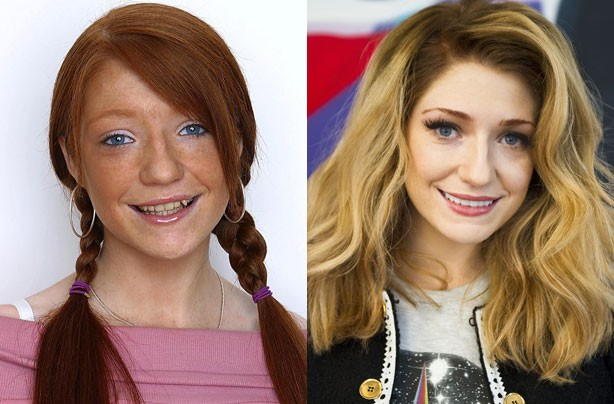 Nicola Roberts' teeth