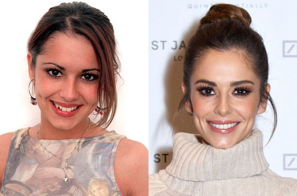 Cheryl Cole's teeth