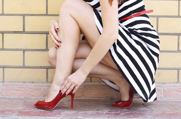 Woman's legs, high heels, cellulite