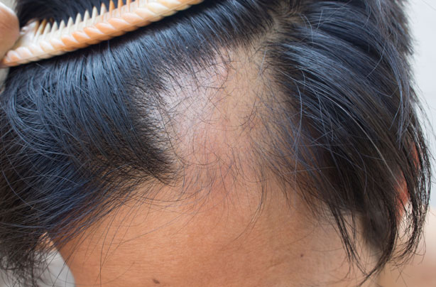 What Is Alopecia Everything You Need To Know Goodtoknow
