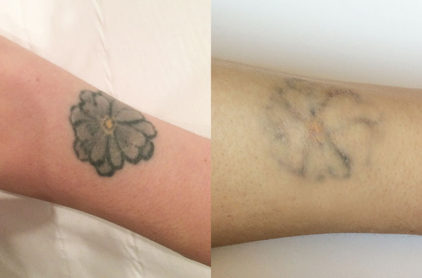 Laser tattoo removal what it 39 s really like to have a for How much does a tattoo removal cost