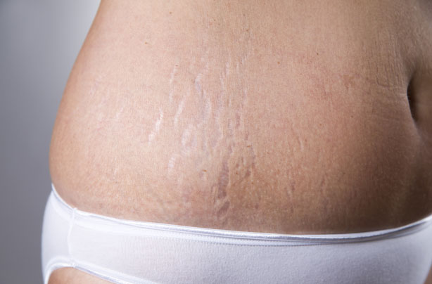 how to avoid stretch marks when pregnant uk