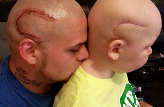 """""""Ak chcú ľudia zazerať, nech zazerajú na oboch."""" povedal otec, ktorý si dal vytetovať jazvu rovnakú akú ma jeho syn trpiaci rakovinou."""