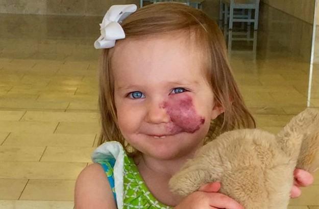 Girl with birthmark