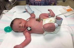 Baby born twice Lynlee Hope