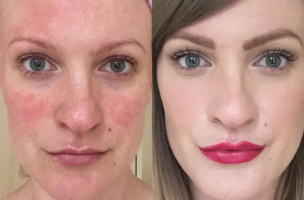 Lex Gillies beauty blogger rosacea