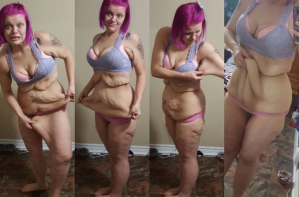 Kayla Butcher weight loss excess skin surgery GoFundMe