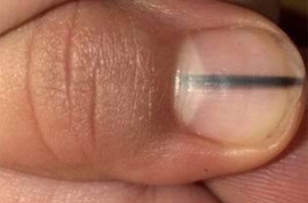 Skin cancer nail melanoma warning