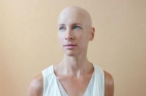 Alopecia awareness month